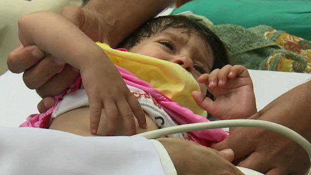 पाकिस्तान, बच्चे, दिल की बीमारी