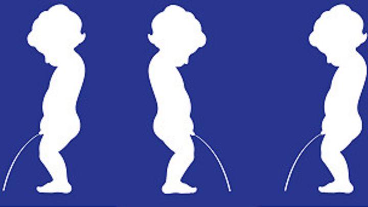 dolor de gota tratamiento natural gota en ambos pies acido urico basso nelle urine